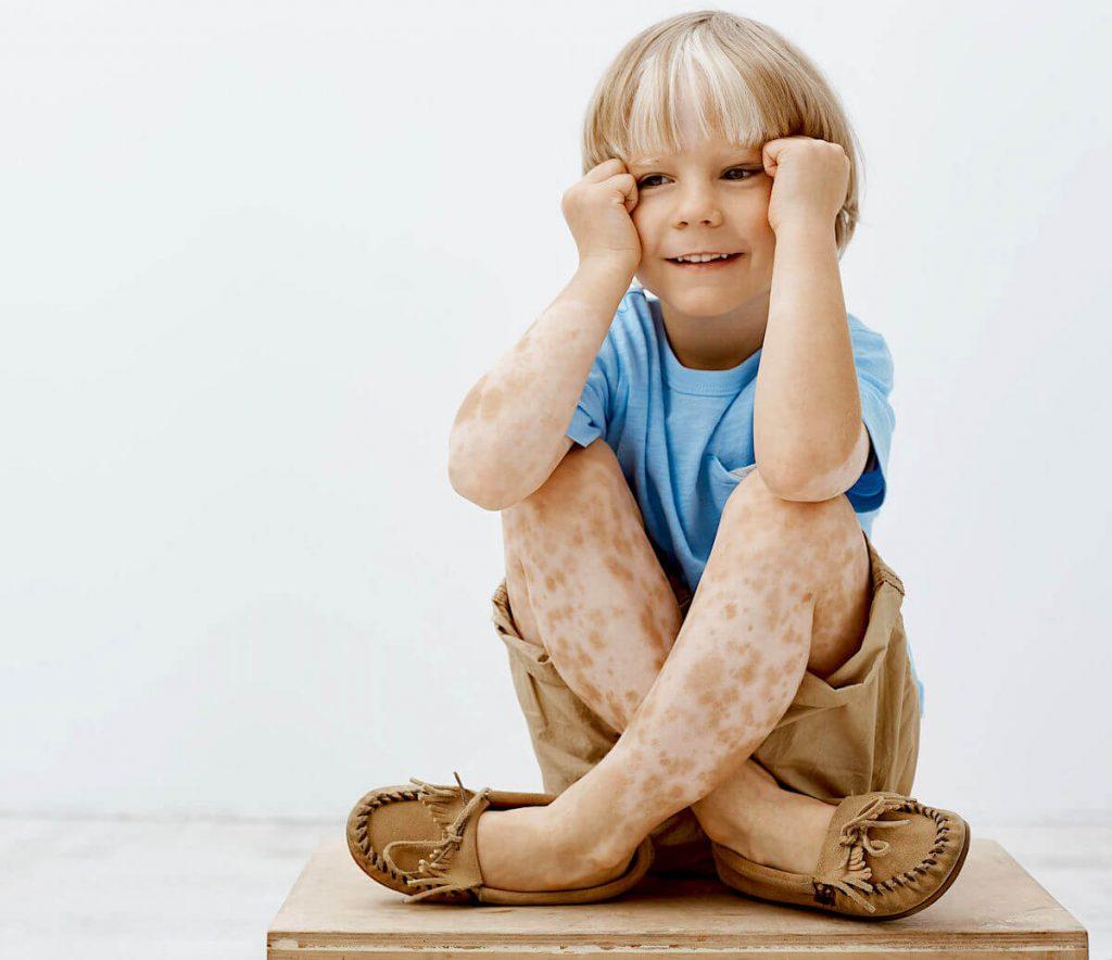 vitiligine nei bambini