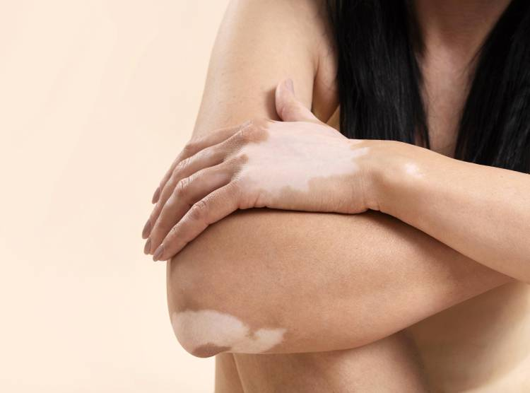 Vitiligine e sclerosi multipla